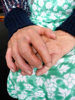 a pair of swollen hands